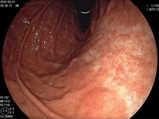 萎縮性胃炎(ピロリ菌感染性胃炎)